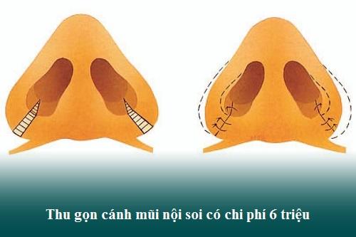 Cuộn/Cắt cánh mũi là gì? Giá bao nhiêu? Phẫu thuật ở đâu đẹp? Hình 7