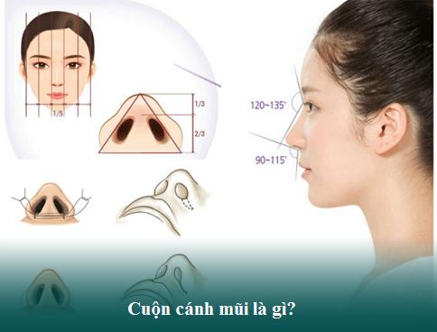 Cuộn cánh mũi là gì? Quy trình, Chi phí, Ưu điểm, Địa chỉ uy tín - Hình 1