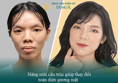 Nâng mũi bán cấu trúc có vĩnh viễn không? Làm sao để mũi bền lâu? Hình 10