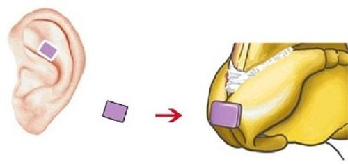 Nâng mũi bọc sụn bao lâu thì lành? 4 Cách giúp mũi lành Nhanh - Hình 1