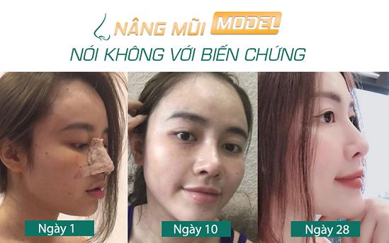 Nâng mũi bọc sụn bao lâu thì lành? 4 Cách giúp mũi lành Nhanh - Hình 2