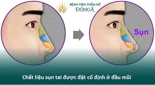 Nâng mũi Hàn Quốc bọc sụn tự thân - Cách làm mũi Đẹp Tự Nhiên - Hình 8