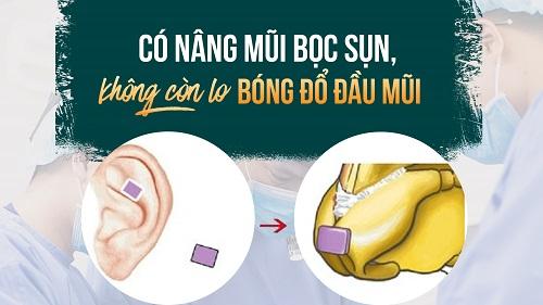 Nâng mũi Hàn Quốc bọc sụn tự thân - Cách làm mũi Đẹp Tự Nhiên - Hình 1