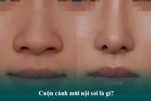 Thu gọn cánh mũi nội soi là gì? Sửa mũi ở đâu Thon gọn và Rẻ? Hình 1