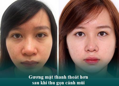 Thu gọn cánh mũi nội soi là gì? Sửa mũi ở đâu Thon gọn và Rẻ? Hình 7