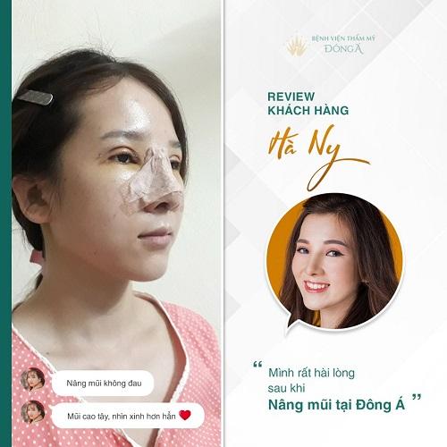 Phẫu thuật mũi - Ưu điểm, Phương pháp, Chi phí các dáng mũi đẹp - Hình 1