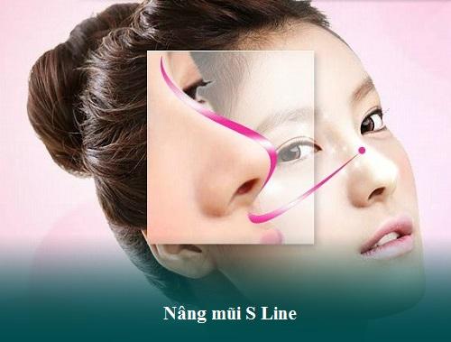 Chi phí nâng mũi cấu trúc, Hàn Quốc, S Line, Bọc sụn tại Đông Á - Hình 9
