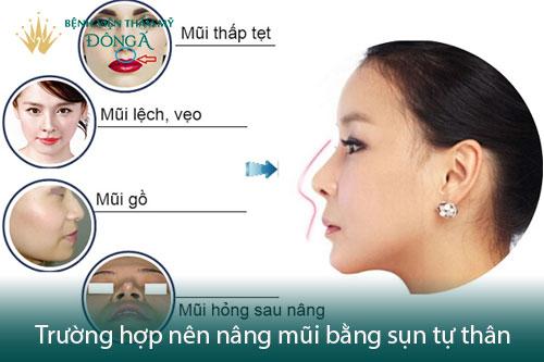 Nâng mũi bằng sụn nhân tạo có tốt không? Có an toàn không? Hình 3