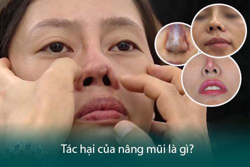 Nâng mũi bằng sụn nhân tạo có tốt không? Có an toàn không? Hình 2