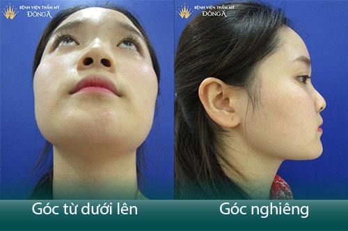 Sửa, Nâng mũi có nguy hiểm không? Liệu có di chứng, tác dụng phụ? Hình 3