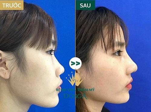 Sửa, Nâng mũi có nguy hiểm không? Liệu có di chứng, tác dụng phụ? Hình 8