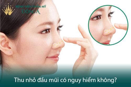 Sửa, Nâng mũi có nguy hiểm không? Liệu có di chứng, tác dụng phụ? Hình 7