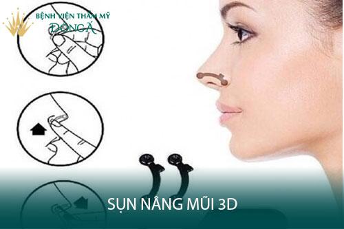Sụn nâng mũi 3D giá rẻ Hàn Quốc có tốt không? Dùng như thế nào? Hình 1