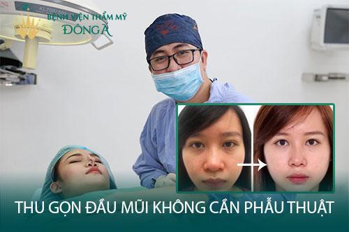 Thu gọn đầu mũi không cần phẫu thuật bằng 2 cách Đơn giản - Hình 1