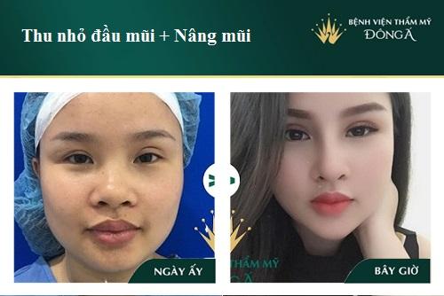Thu gọn đầu mũi không cần phẫu thuật bằng 2 cách Đơn giản - Hình 5