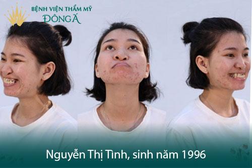 Lỗ mũi hở hàm ếch là gì? Nguyên nhân do đâu? Sửa như thế nào? Hình 7