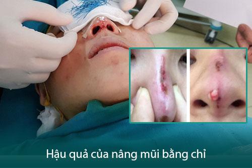 Nâng mũi bằng chỉ collagen là gì? Có tốt không? Có nên sử dụng? Hình 3