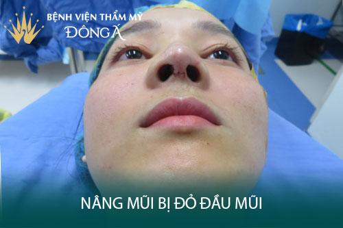Nâng mũi bị đỏ đầu mũi có nguy hiểm không? Bao lâu thì hết đỏ? Hình 1