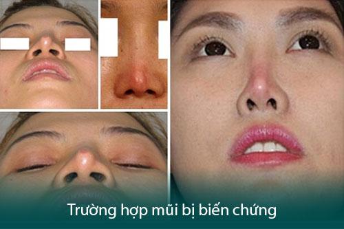 Nâng mũi bị đỏ đầu mũi có nguy hiểm không? Bao lâu thì hết đỏ? Hình 2