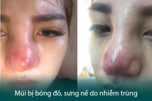 Nâng mũi bị đỏ đầu mũi có nguy hiểm không? Bao lâu thì hết đỏ? Hình 3