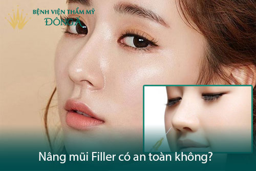 Nâng mũi Filler được bao lâu? Loại Filler nào cho mũi Đẹp bền? Hình 4