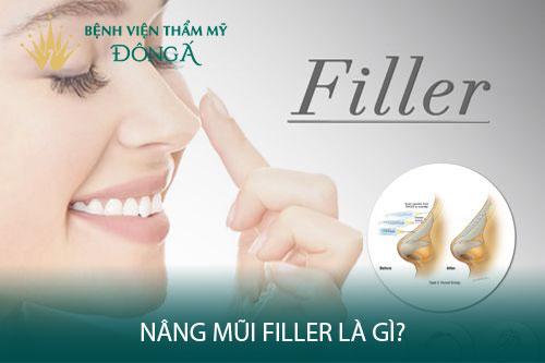 Nâng mũi Filler là gì? 5 Thông tin bạn cần nắm trước khi tiêm Filler - Hình 1