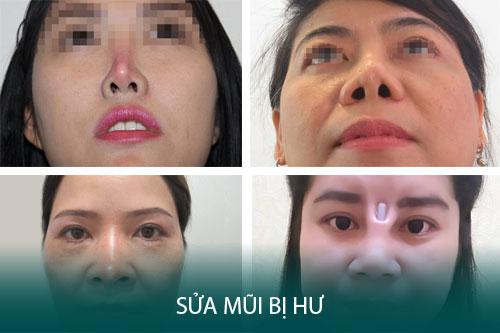 Nâng mũi hỏng - Dấu hiệu, nguyên nhân và cách khắc phục triệt để - Hình 1