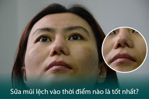 Nâng mũi hỏng - Dấu hiệu, nguyên nhân và cách khắc phục triệt để - Hình 5