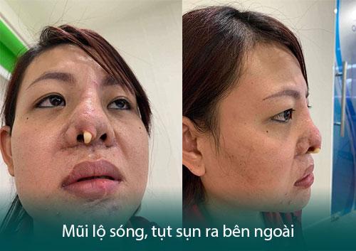 Nâng mũi hỏng - Dấu hiệu, nguyên nhân và cách khắc phục triệt để - Hình 2