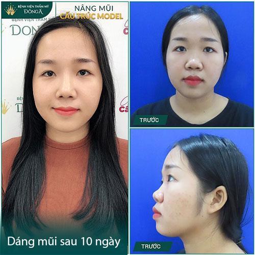 Nâng mũi sau 10 ngày - 2 tuần có Đẹp, hết sưng và dừng ăn kiêng? Hình 3