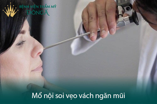 Chữa vẹo vách ngăn mũi bằng mổ nội soi hay mổ phẫu thuật? Hình 4
