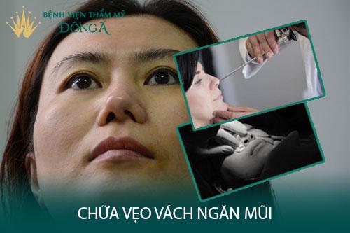 Chữa vẹo vách ngăn mũi bằng mổ nội soi hay mổ phẫu thuật? Hình 1