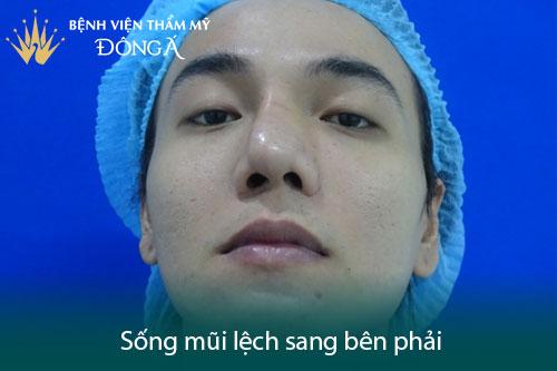 Chữa vẹo vách ngăn mũi bằng mổ nội soi hay mổ phẫu thuật? Hình 2