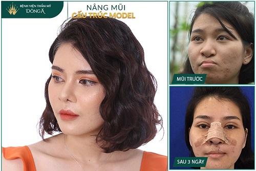 Chữa vẹo vách ngăn mũi bằng mổ nội soi hay mổ phẫu thuật? Hình 5