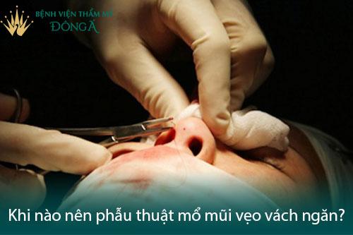 Mổ vẹo vách ngăn mũi ở đâu tốt, có nguy hiểm và đau không? Hình 4