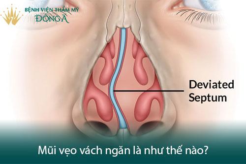 Mổ vẹo vách ngăn mũi ở đâu tốt, có nguy hiểm và đau không? Hình 1