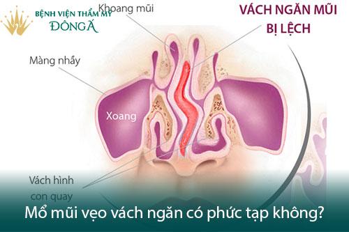 Mổ vẹo vách ngăn mũi ở đâu tốt, có nguy hiểm và đau không? Hình 2