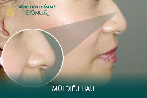 Mũi diều hâu là gì? Đàn ông, phụ nữ có tướng mũi diều hâu ra sao? Hình 1