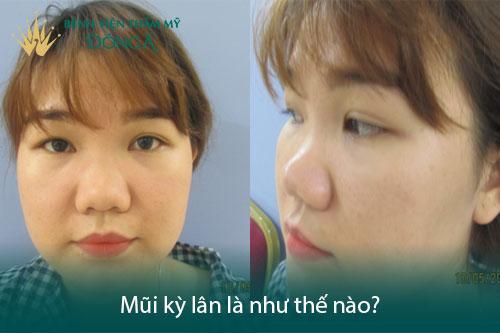 Tướng mũi kỳ lân 2020 là Lộc hay Hại? Có nên sửa không? Hình 1