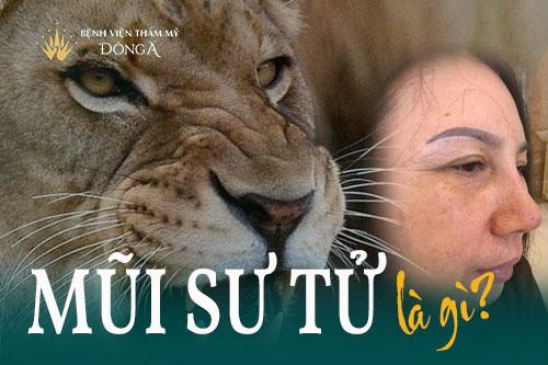 Đừng nhầm lẫn mũi sư tử với mũi kỳ lân, mũi túi mật - Hình 1