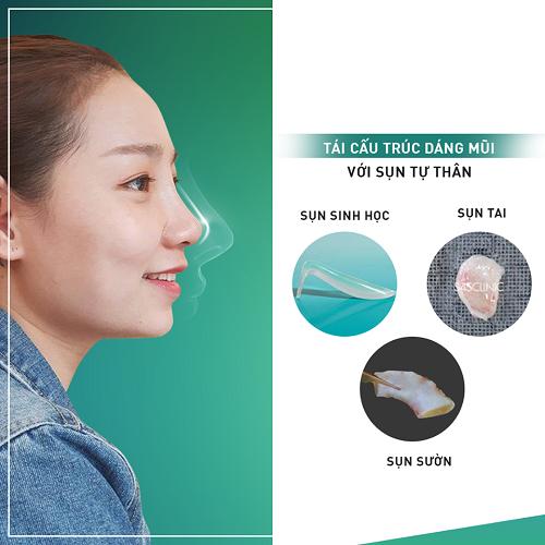 Nâng mũi đẹp ở Việt Nam phụ thuộc vào 3 Yếu Tố quan trọng này - Hình 2