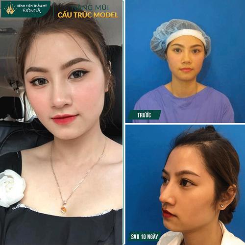 Nâng mũi đẹp ở Việt Nam phụ thuộc vào 3 Yếu Tố quan trọng này - Hình 3