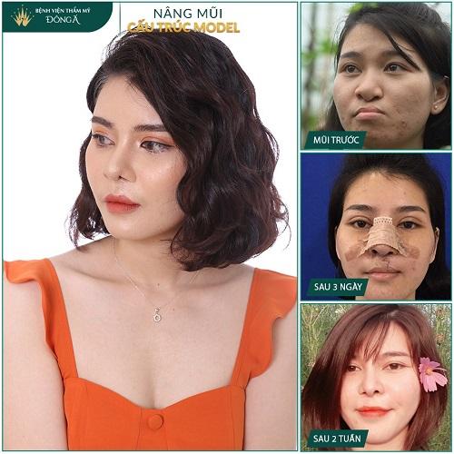 Nâng mũi đẹp ở Việt Nam phụ thuộc vào 3 Yếu Tố quan trọng này - Hình 4