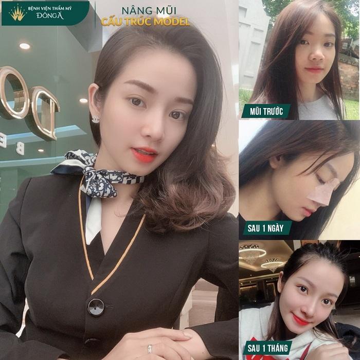 Nâng mũi đẹp ở Việt Nam phụ thuộc vào 3 Yếu Tố quan trọng này - Hình 5