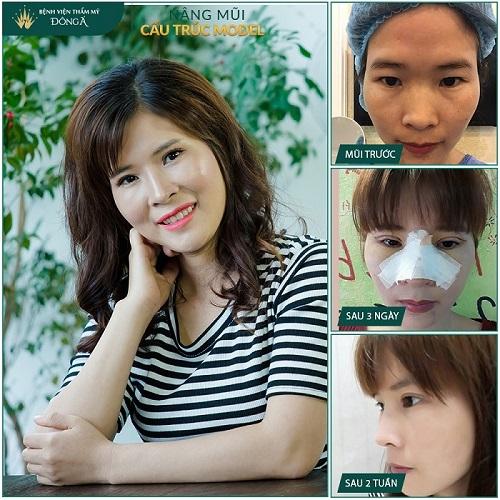 Nâng mũi đẹp ở Việt Nam phụ thuộc vào 3 Yếu Tố quan trọng này - Hình 6
