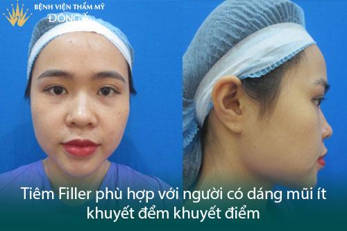 Nâng mũi tiêm Filler giá bao nhiêu? 5 Bí mật ẩn sau bảng giá - Hình 3