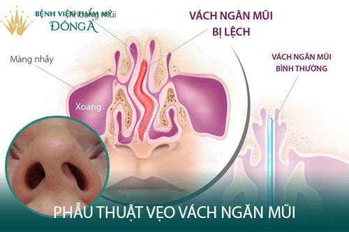 Phẫu thuật vẹo vách ngăn mũi trong bao lâu, có đau không? Hình 1