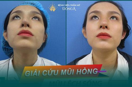 Phẫu thuật vẹo vách ngăn mũi trong bao lâu, có đau không? Hình 3