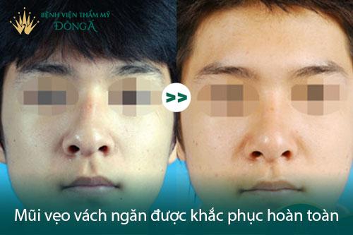 Phẫu thuật vẹo vách ngăn mũi trong bao lâu, có đau không? Hình 4
