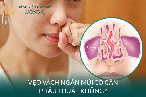 Vẹo vách ngăn mũi có cần phẫu thuật? Có nguy hiểm không? Hình 1
